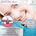 عرض خاص على زراعة الأسنان | عيادة اسنان بالكويت